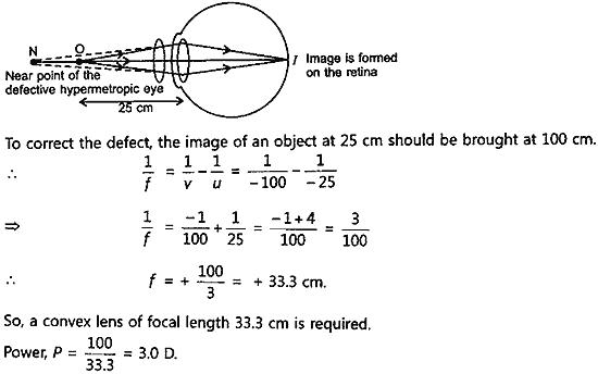 Make a diagram to show how hypermetropia is corrected